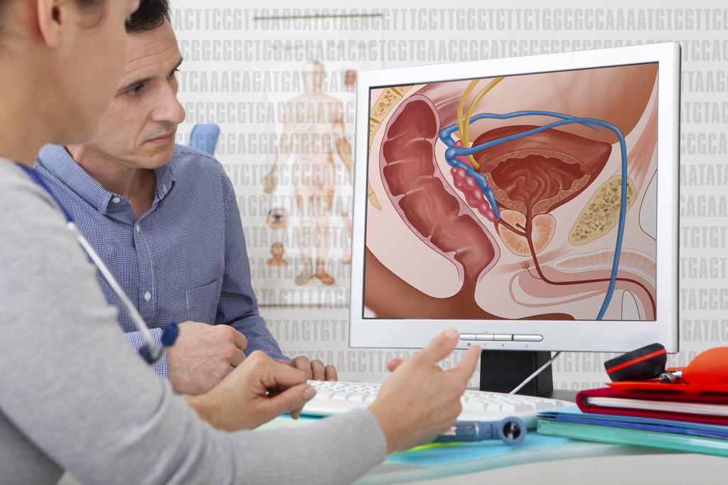 Варианты лечения рака предстательной железы следующие: выжидательная тактика.