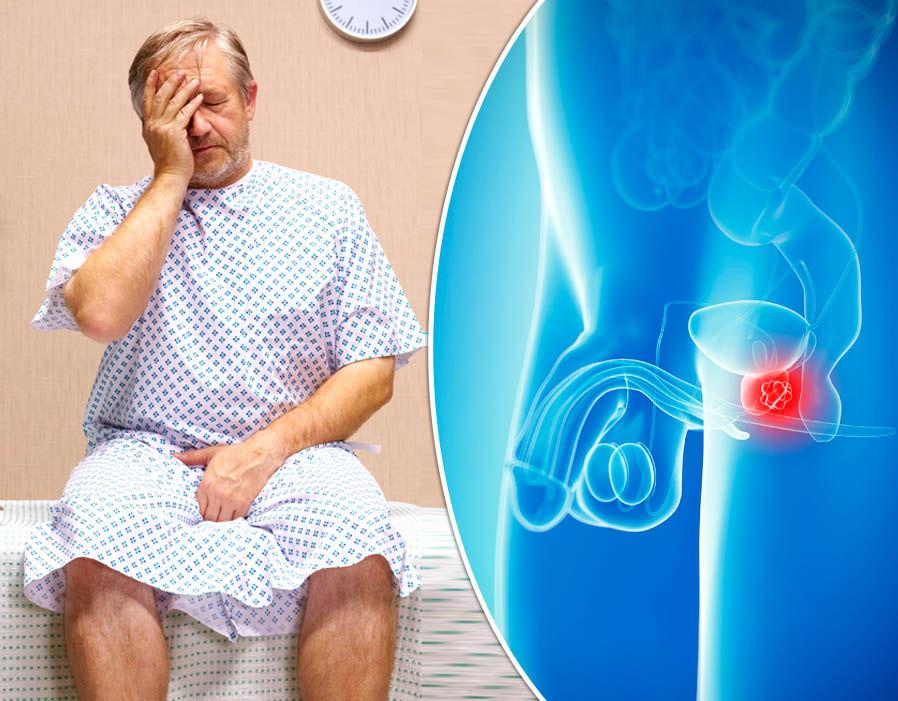 Простатиты у мужчин признаки фото лечение лечение простатита чесноком в домашних