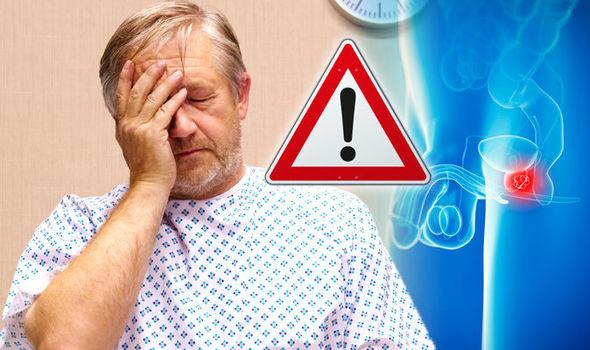 Симптомы фиброза простаты 24