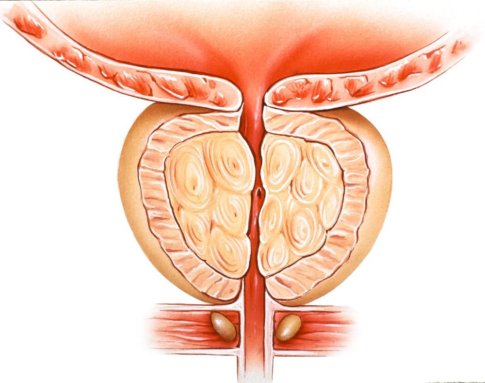 Симптомы фиброза простаты 23