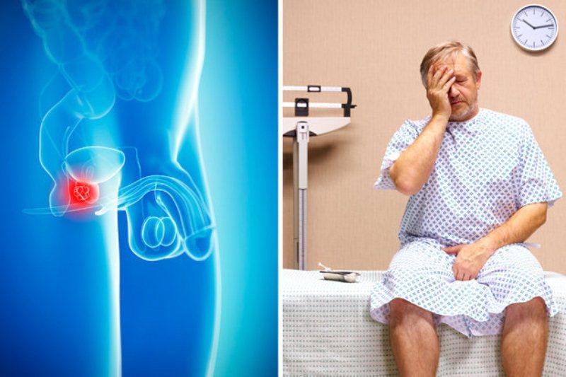 Сколько живут с раком простаты? Стадии, диагностика и методы лечения рака простаты