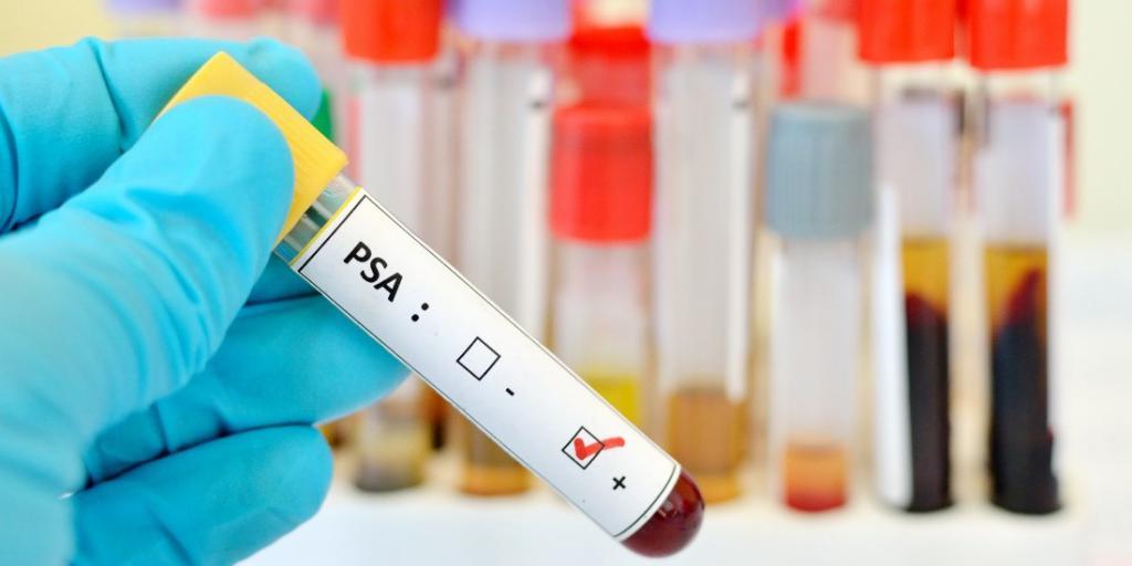 Какой уровень ПСА при аденоме предстательной железы