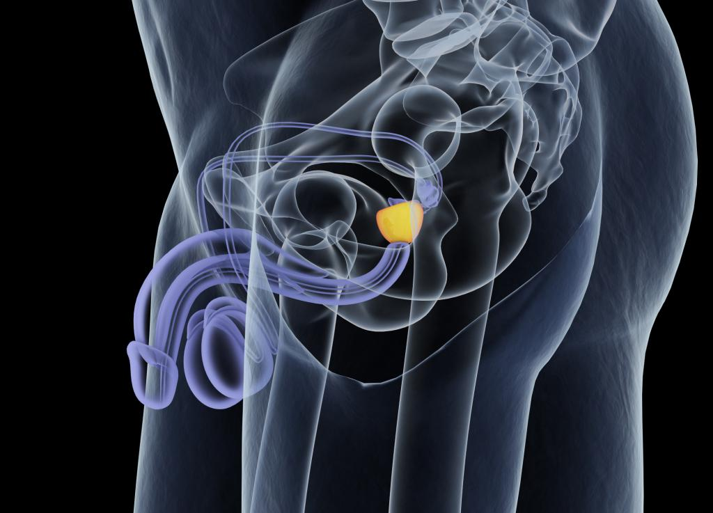 Оптимальным методом для узи предстательной железы является