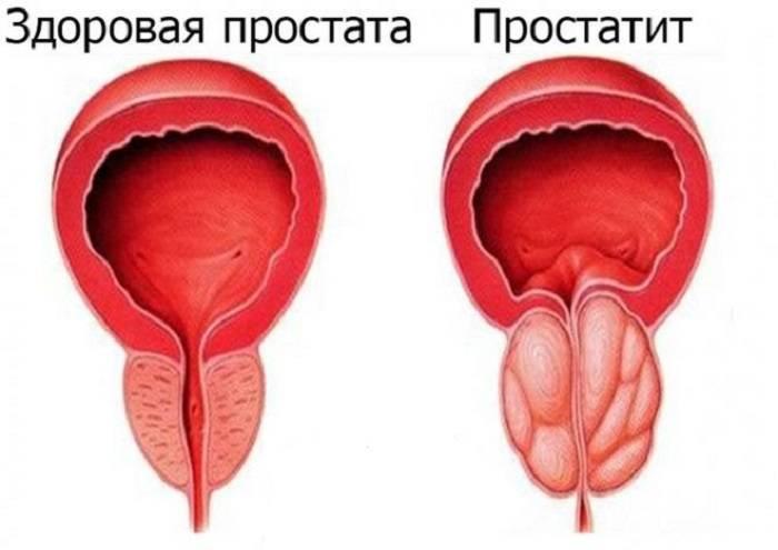 Что значит неровный контур предстательной железы