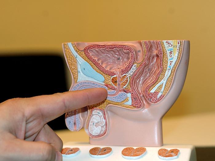 Как посчитать объем простаты - Смарт-Прост физиотерапевтический аппарат