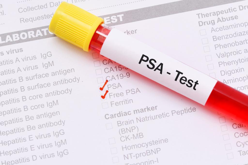 ПСА тест
